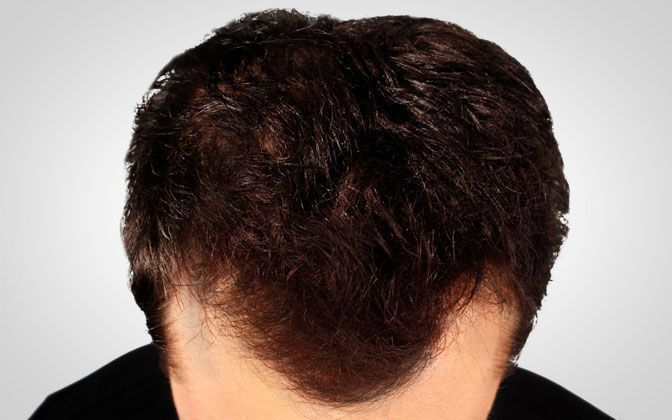 male thickening hair - after