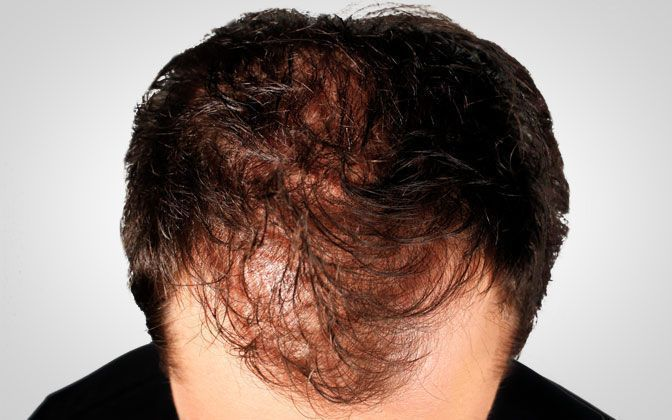 male thickening hair - before