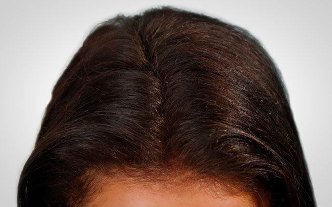 female biothik thickening hair - after