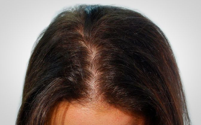 biothik female thickening hair - before