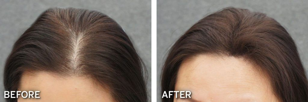 Biothik Hair Fibres before and after results