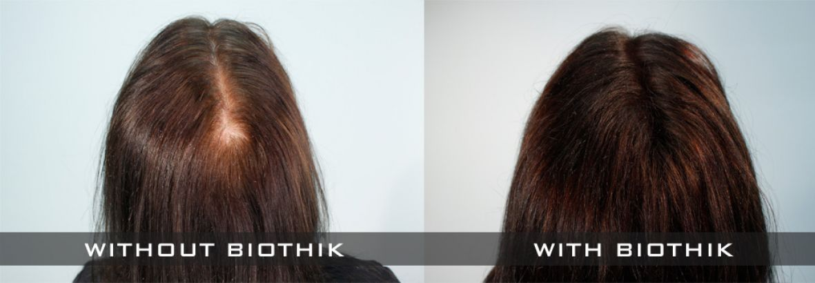 Biothik Hair Fibres for women - crown of head