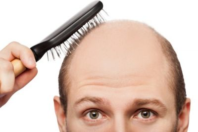 7-hair-loss-treatments