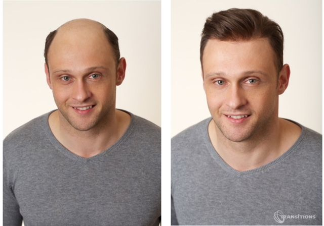 Sensigraftt - Non-surgical hair restoration system - David - before & after