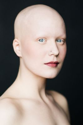 Beautiful Girl with Alopecia