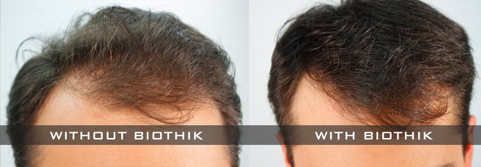 Biothik Hair thickener for men long hair front