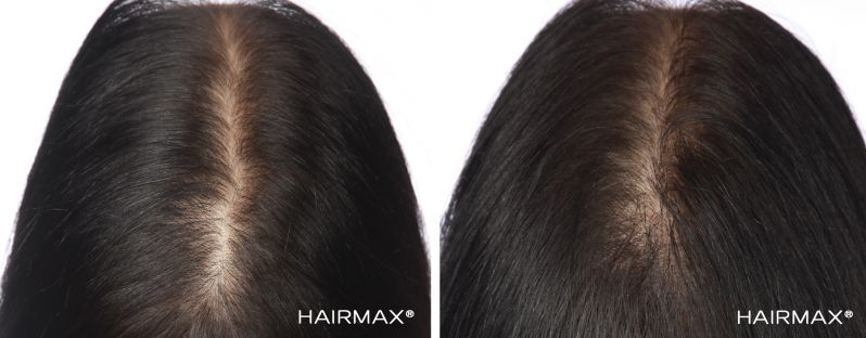 Laser light therapy for women_before and after with hairmax_Australia