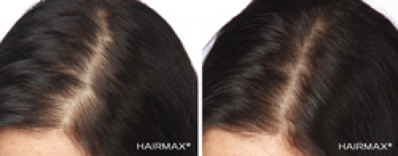 HairMax sample 01