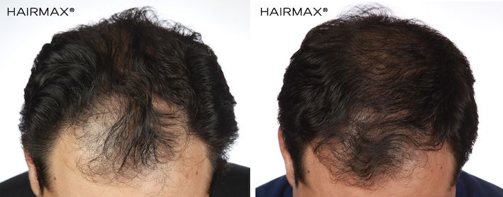 Hair regrowth with Laser hair Therapy - Transitions Hair