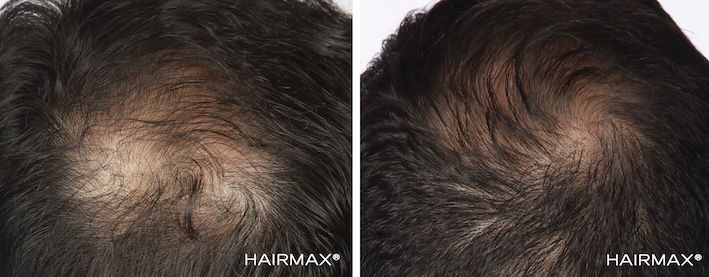 Laser hair regrowth therapy - Transitions hair