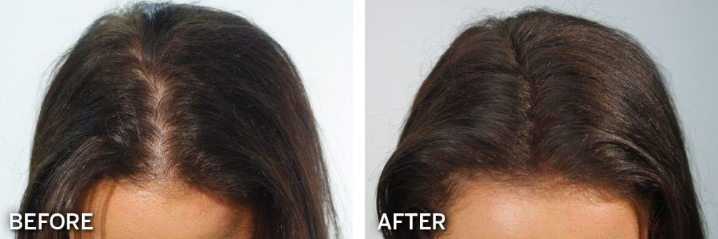 Biothik Hair Fibres before and after results #3