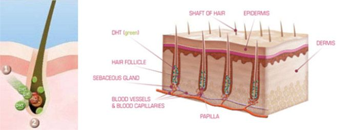 androgenetic alopecia is typically hereditary, so it's quite likely that  other people in your family have experienced it, or are likely to