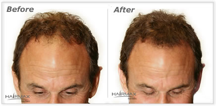 Hairmax hair natural keratin hair fibers, hair loss concealer