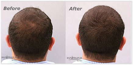 Hairmax hair fibers, natural keratin hair fibers, hair loss concealer
