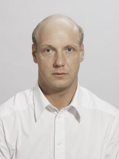 Patrick Before Sensigraft - bald, baldness, hair loss