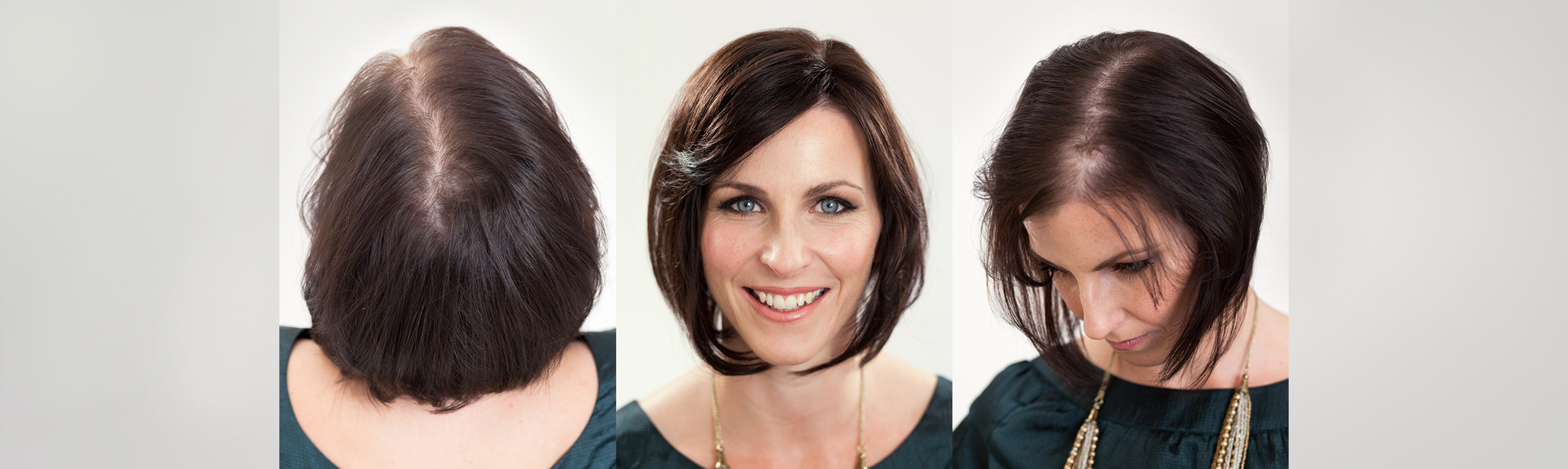hair loss in women - transitions hair