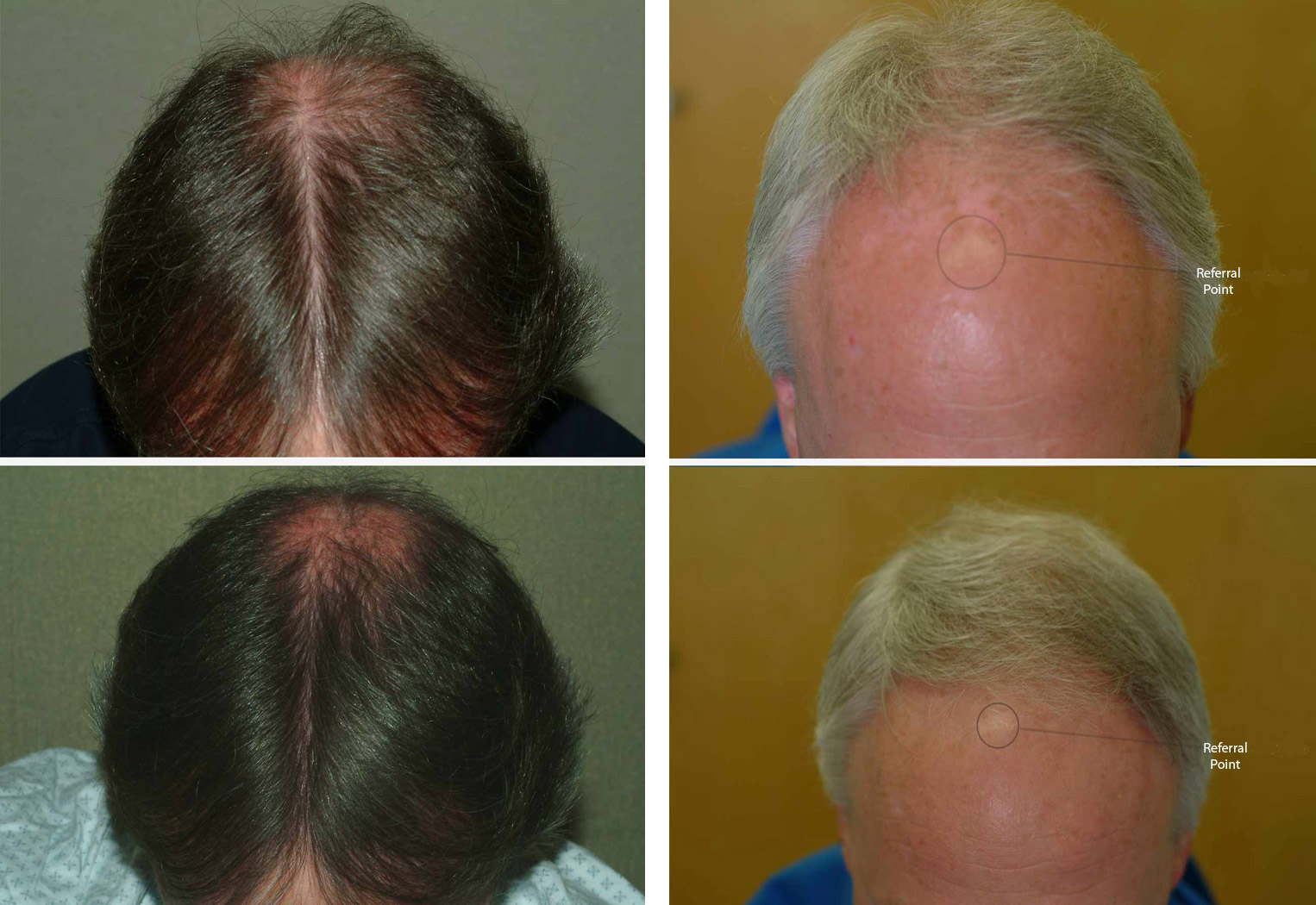 hairmax laser hair therapy treatment photos before and after